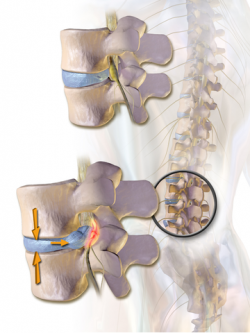 Cox Technic - Herniated Disc Treatment